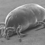 Dust Mites: A Microscopic Threat to Your Family's Health