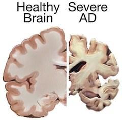 Organic Herbs for Alzheimer