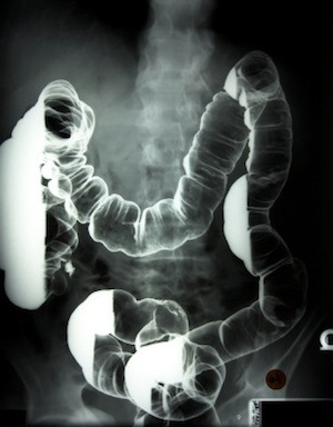 Colon X-ray with Barium