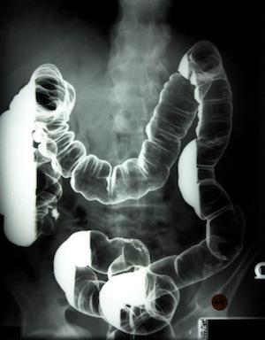 Colon X-ray with Barium