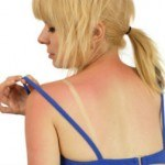 13 Natural Remedies for Sunburn