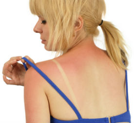 11 Natural Remedies for Sunburn