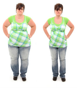 woman before-after weight loss