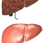 Symptoms of Liver Toxicity