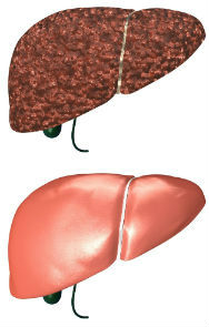 healthy-unhealthy liver