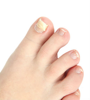 12-facts-about-nail-fungus
