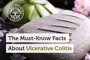 ulcerative colitis is a chronic, inflammatory autoimmune disease that causes open sores on the colon wall.