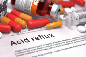 acid-reflux-prescription-medications