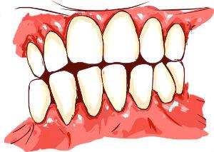 Unhealthy gum tissue with periodontitis