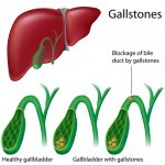 Gallstones: Symptoms and Natural Remedies