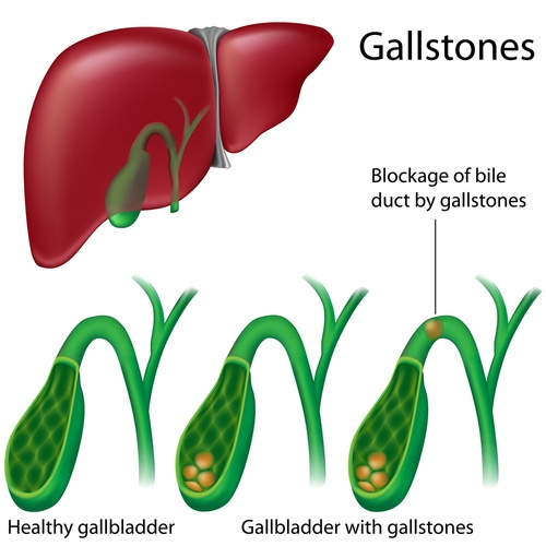 Gallstones are small clumps that form in your gallbladder that can be asymptomatic or cause tremendous pain in the upper abdomen.