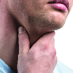 The 5 Most Common Thyroid Disorders