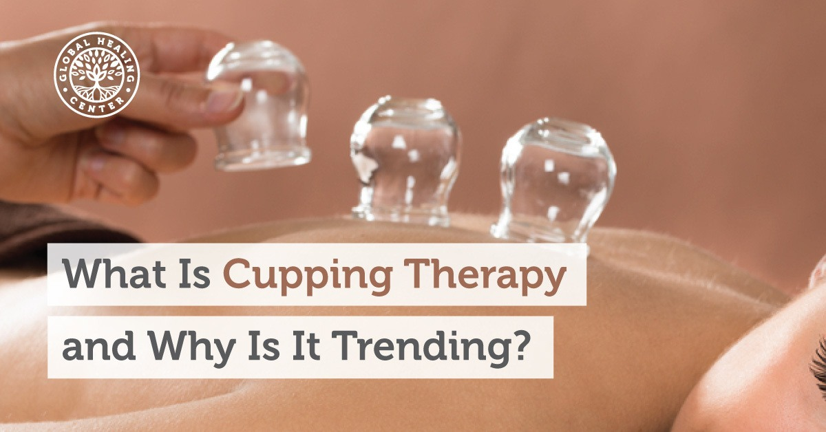 What Is Cupping Therapy And Why Is It Trending