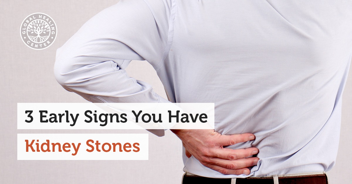 3 Early Signs You Have Kidney Stones