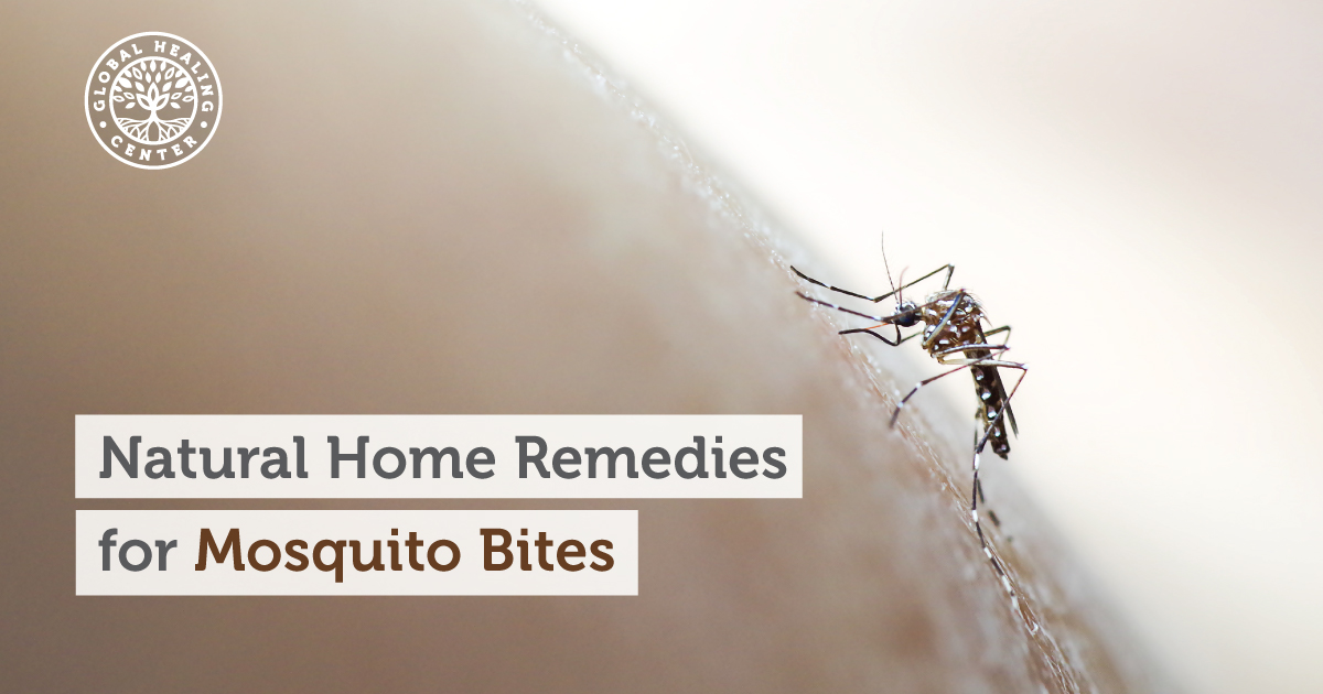 Natural Home Remedies For Mosquito Bites