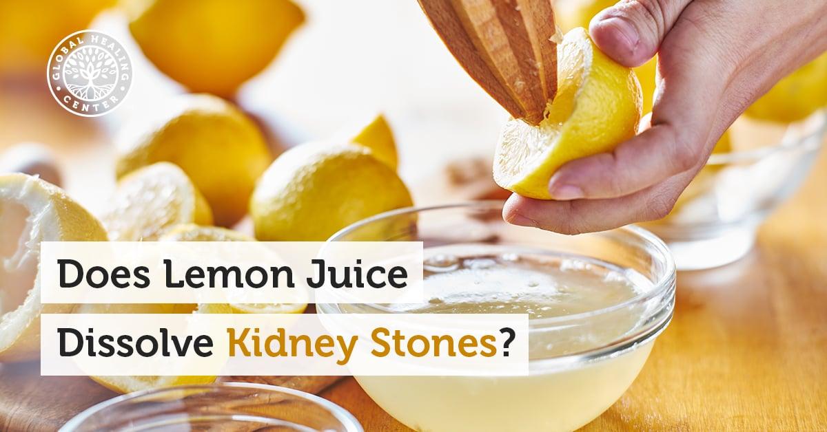 Does Lemon Juice Dissolve Kidney Stones