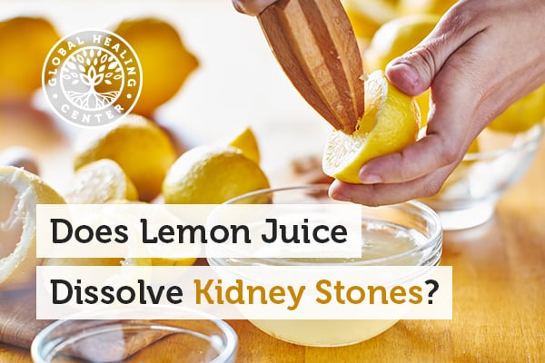 Lemon juice can help protect against kidney stones.