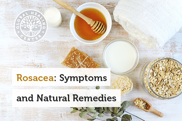 Raw honey is one of many natural remedies for rosacea.
