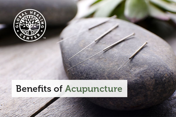Several acupuncture needles on a rock.