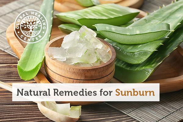 A bowl of aloe vera. Aloe vera is a natural remedy for sunburns.